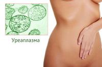 Уреаплазма (Ureaplasma species), определение ДНК
