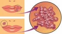 Цитомегаловирус (Cytomegalovirus), определение ДНК